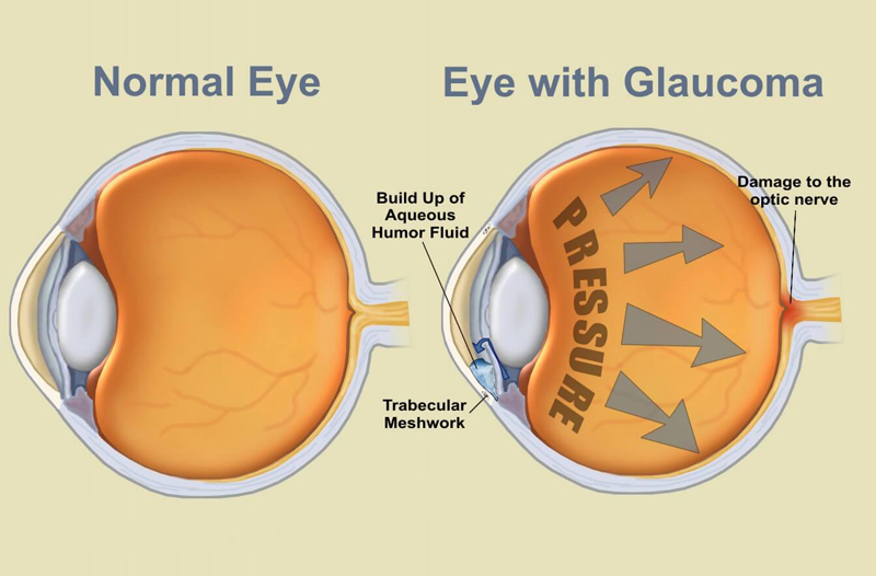 02-glaucoma-structure-naturanrg
