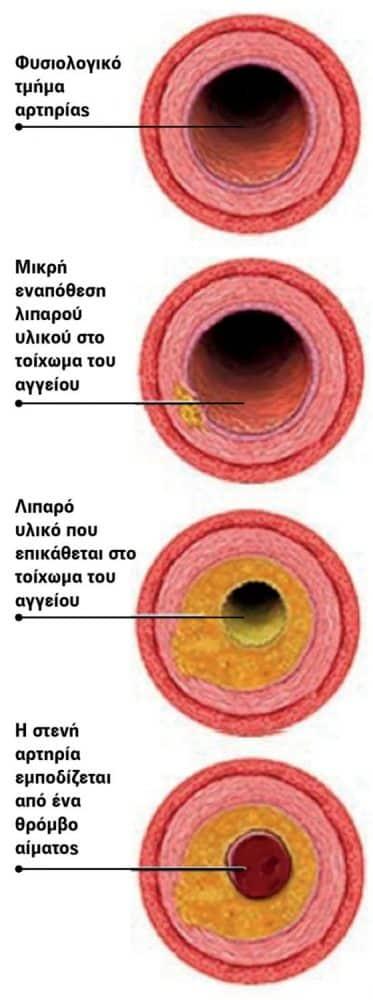 Τι κρύβεται πίσω από τη χοληστερίνη; naturanrg